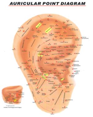Auricular Medicine
